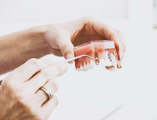 Mikor kerülhet sor egy implantátum beültetésére?
